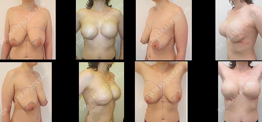 BRCA pozitív fiatal nőbeteg, mindkét oldali emlőrák miatt kétoldali bőrtakarékos teljes mirigyeltávolítás és azonnali szövettágító ballonnal történő emlőhelyreállítás, majd kemoterápiás és sugárterápia után mindkét oldali emlő szilikon implantátumokkal történő helyreállítása. Emlőbimbóképzés és bimbóudvar tetoválás előtti állapot.