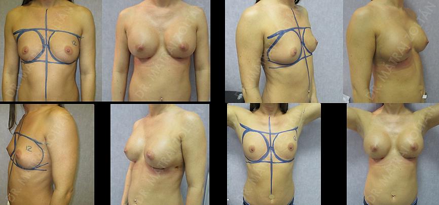 Emlőrák műtét előtt és után készült fotók.