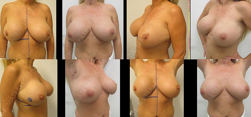 A 44 éves nőbetegnél korábban mindkét oldali szilikon implantátumokkal történő emlő térfogatnövelés történt. Jelenleg a jobb emlőben a külső alsó negyedben alakult ki 20 mm-es rosszindulatú daganat. A jobb oldali külső áthajlási redőben végzett metszésből a mirigy alatti preparálással végeztük a tumor széles kimetszését és a megmaradó mirigyállomány remodellálását. Az implantátum kapszulájának egy részletét a tumor alapján eltávolítottuk.