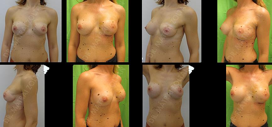 A korábban végzett emlőhelyreállító műtétek eredményei is fokozhatók. A 48 éves nőbeteg előzményében bal oldali mastectomia szerepelt, majd széles hátizomlebennyel és szilikon implantátummal történő emlőhelyreállítás, valamint ellenoldali szilikon implantátummal történő szimmetrizáció. A rekonstrukció ellenére az emlők között érdemi aszimmetria maradt fenn. Jelenleg a bal oldalon a korábban más intézetben behelyezett 235 ccm anatómiai implantátumot 375 ccm-re cseréltük, kapszuloplasztikát végeztünk és autológ zsírtranszplantációt, amivel a hosszú évek aszimmetriáját sikeresen korrigáltuk.