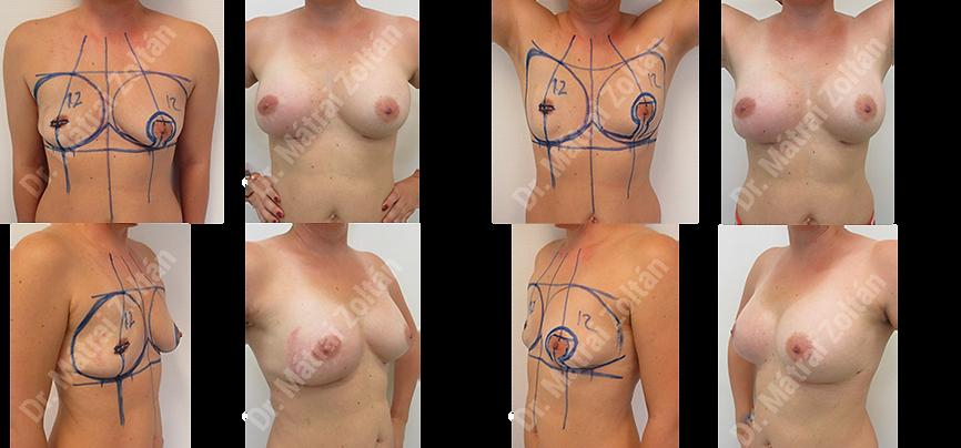 Egyoldali bimbóudvar megtartó masztektómia, majd implantátum rekonstrukció és szimmetrizáció.