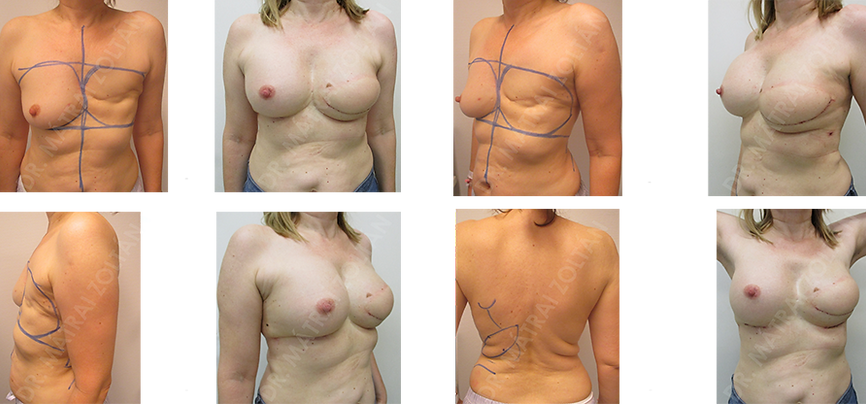 Az 52 éves nőbetegnél bal oldali masztektómia történt emlőrák miatt. Bal oldalon széles hátizomlebeny transzpozíciót és expander beültetést végeztünk, majd bal oldali expander –szilikon implantátum csere és jobb oldali szilikon implantátummal történő szimmetrizációt. Szükséges még bal oldali emlőbimbó képzés és tetoválás.