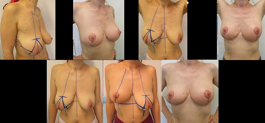 A 40 éves nőbeteget a jobb emlő kiterjedt, nem tapintható rosszindulatú daganata miatt operáltuk izotópjelölt (ROLL-radioquided occult lesion localisation) onkoplasztikus emlőmegtartó technikával. Miután a szövettan ép mikroszkópos sebészi széleket igazolt, a páciensnél korai halasztott (még a sugárterápiát megelőzően) bal oldali szimmetrizációs célú méretcsökkentő emlőfelvarrást végeztünk.