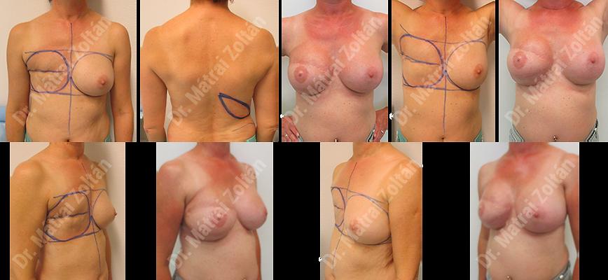 Széles hátizomlebennyel és szilikon implantátummal történő rekonstrukció és ellenoldali szimmetrizáció