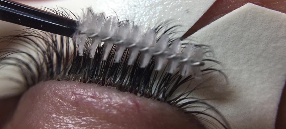 Buildup at the lash follicle