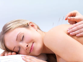 acupuncture-traditional.jpg