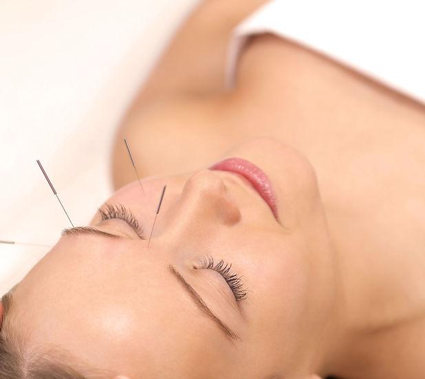 facial-acupuncture-good-goddess-2-web.jp