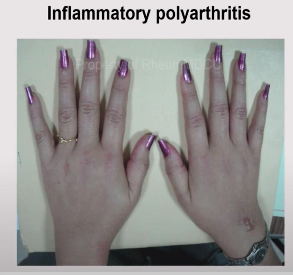บวมข้อนิ้ว Inflammatory polyarthritis