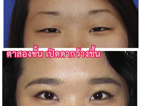 ตาสองชั้นเกาหลี ตาโตขึ้น
