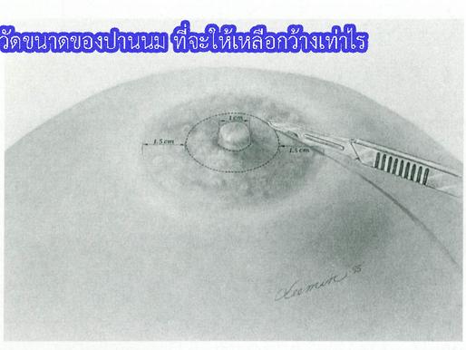 ทำผ่าตัดลดปานนม ตัดแบบโดนัทด้านใน และแบบโดนัทด้านนอก