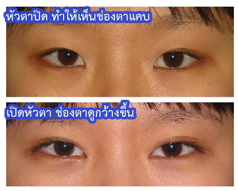 ผ่าตัดเปิดหัวตา พร้อมๆกับทำตาสองชั้น