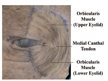 Upper Blepharoplaty and Epicanthoplasty