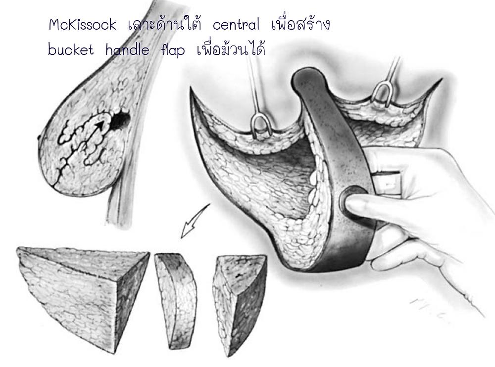 McKissock เลาะใต้ central สร้าง bucket handle flap เพื่อม้วน flap