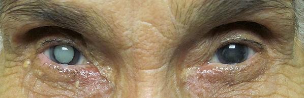 mature-cataract-5.jpg