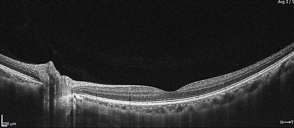 Retinal Normal_.jpg