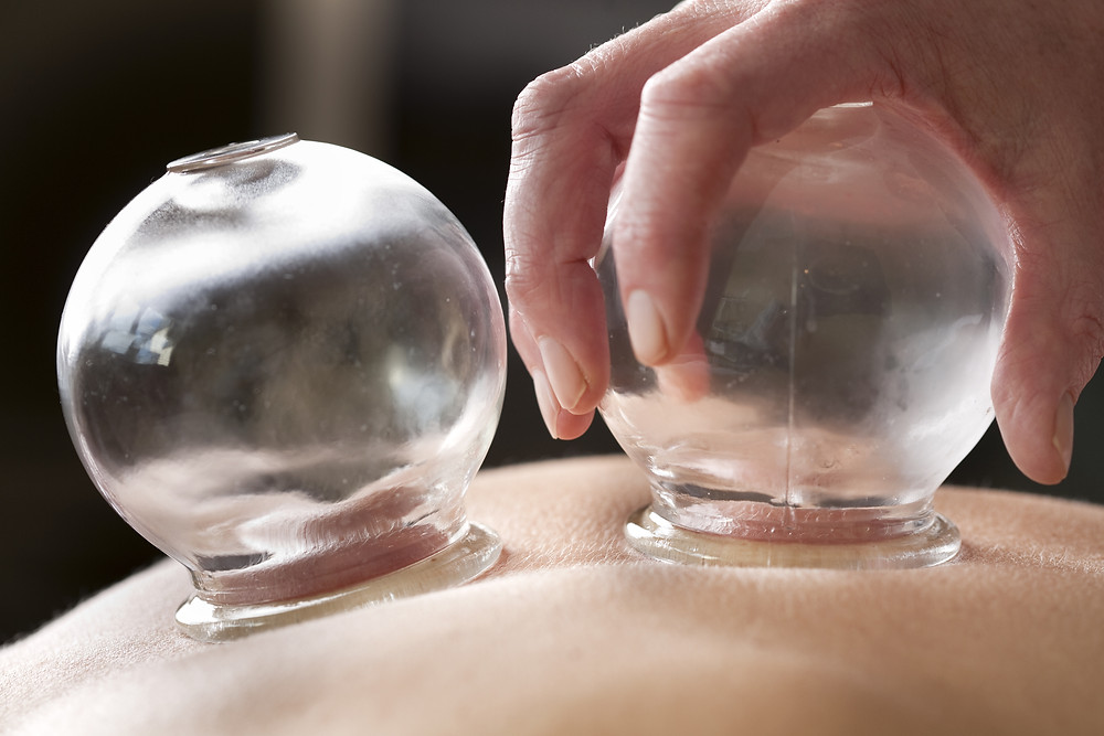 Glass cups are used to create suction on the skin, bringing new blood to the area.  Cupping helps to relieve pain and sore muscles and is used to treat colds and the flu.
