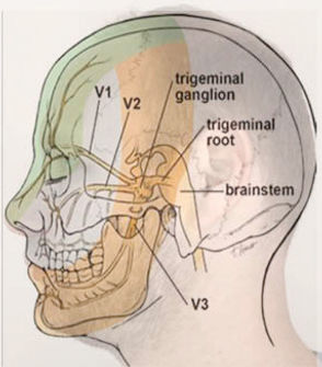trigeminal neuralgia face pain treatmentby chinese medicine caulfield victoria australia, Melbourne Traditional Chinese Medicine