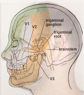 trigeminal neuralgia face pain treatmentby chinese medicine caulfield victoria australia, Melbourne Traditional Chinese Medicine