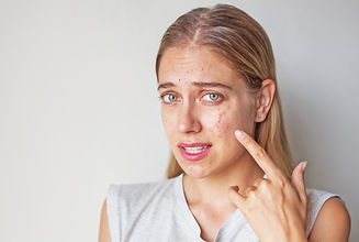 skin condition acne psoriasis dermatitis eczema chinese medicine herb
