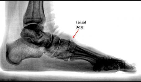 Bumpy Feet Causing Pain?