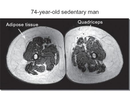 Sedentary versus Athletic Legs - Keep Moving as You Age!