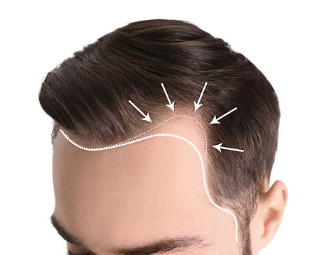 Young man with hair loss problem on whit