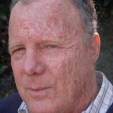 Aged burn makeup