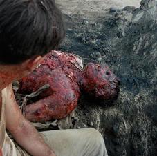 Burned Body