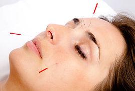 Local Acupuncture