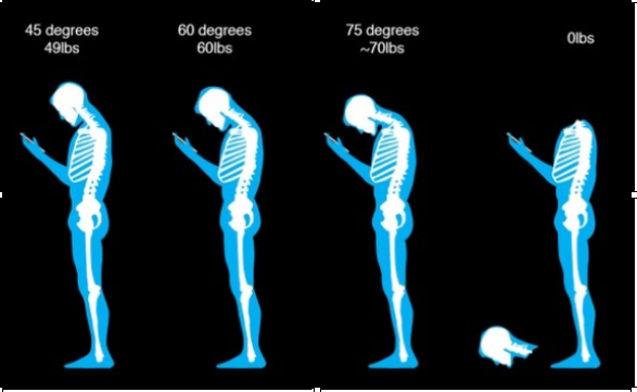 What is good posture?