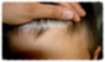 dermatite seboreica, doença de pele, dermatologista