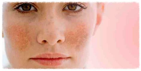 melasma, doença de pele, dermatologista