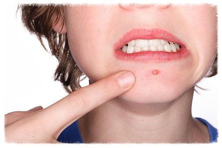 cuidados com a pele acne