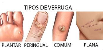 verruga, tratamento, doença de pele, dermatologista