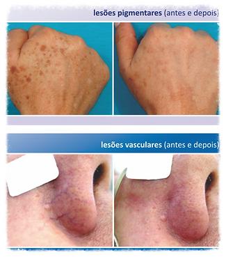 luz pulsada, doença de pele, dermatologista