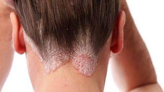 psoríase, doença de pele, dermatologista