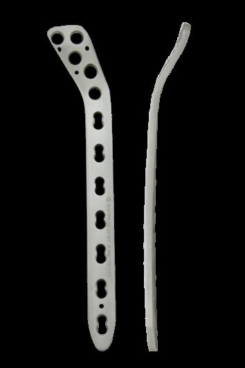 Proximal Tibia Locked Plate