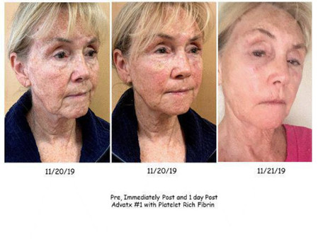 Before and After anti-aging