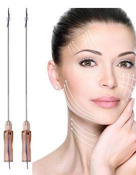 Non-Surgical Facelift PDO Threads