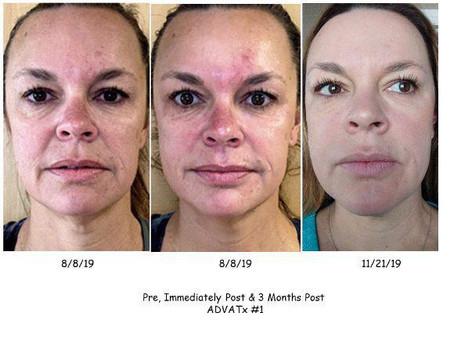 Anti-aging aesthetic treatment