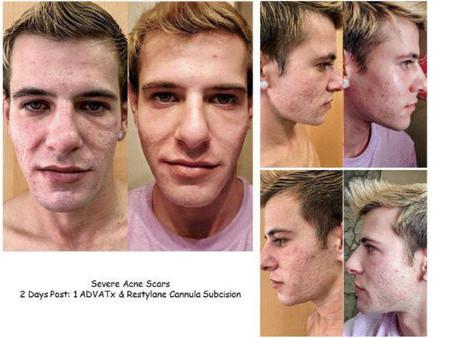 acne and acne scar treatments