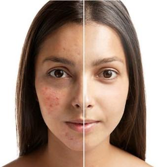 eliminate acne