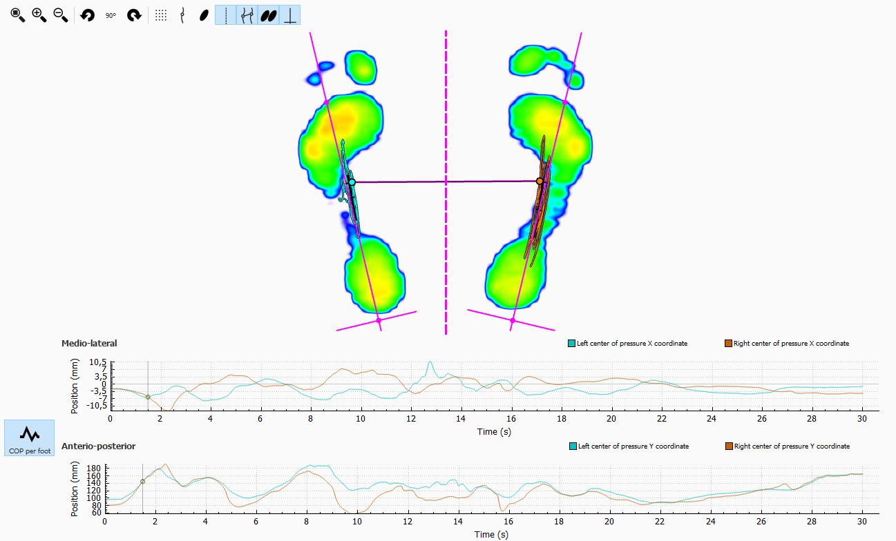 balance_2_feet_graph.png