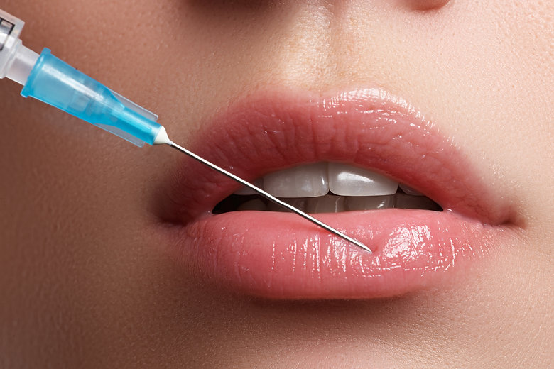 Close-up Of Beautiful Woman Gets Injection In Her Lips.jpg