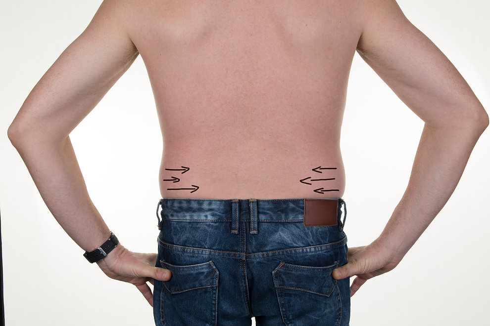 Close-up Of Man's Back With Correction Lines For Abdominal Surgery.jpg