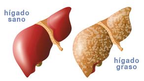 Hígado Graso (non-alcoholic fatty liver disease o NAFLD)