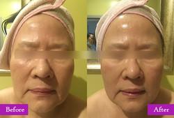 Facial-01