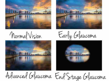 Myths and Facts about Glaucoma
