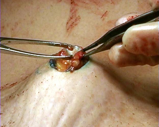 Corpa Delicta (belly button) video still
