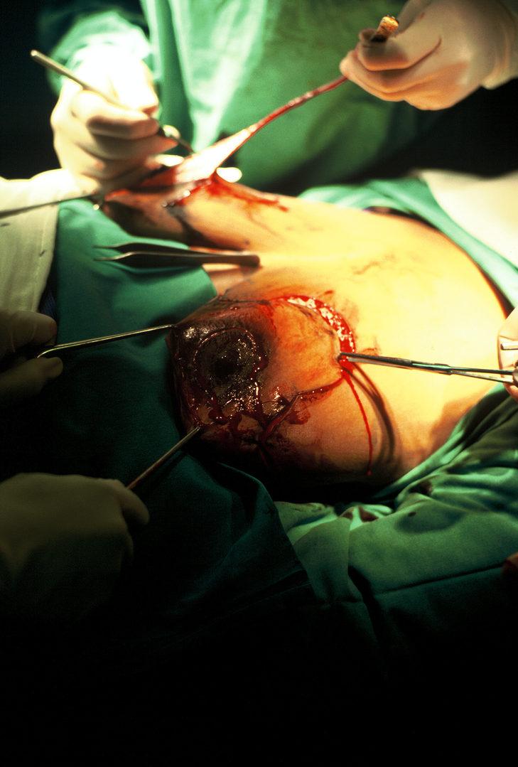 10. Breast Aesthetics - Reduction Series